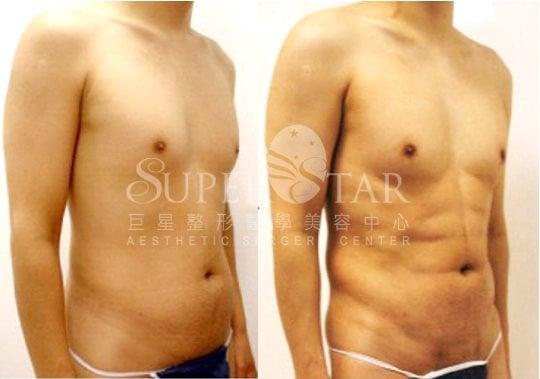 4D威塑抽脂 - 六塊肌+胸肌線+人魚線