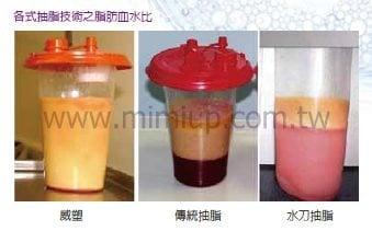 威塑抽脂與其他抽脂術式之比較