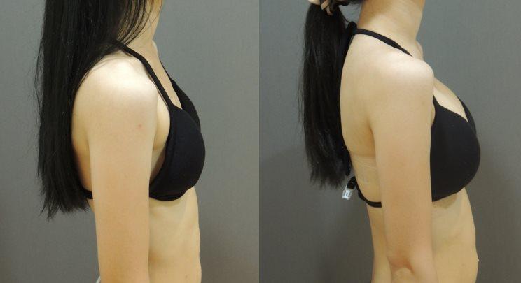 二代雙面複合式隆乳, 二代雙面蜜桃絨隆乳