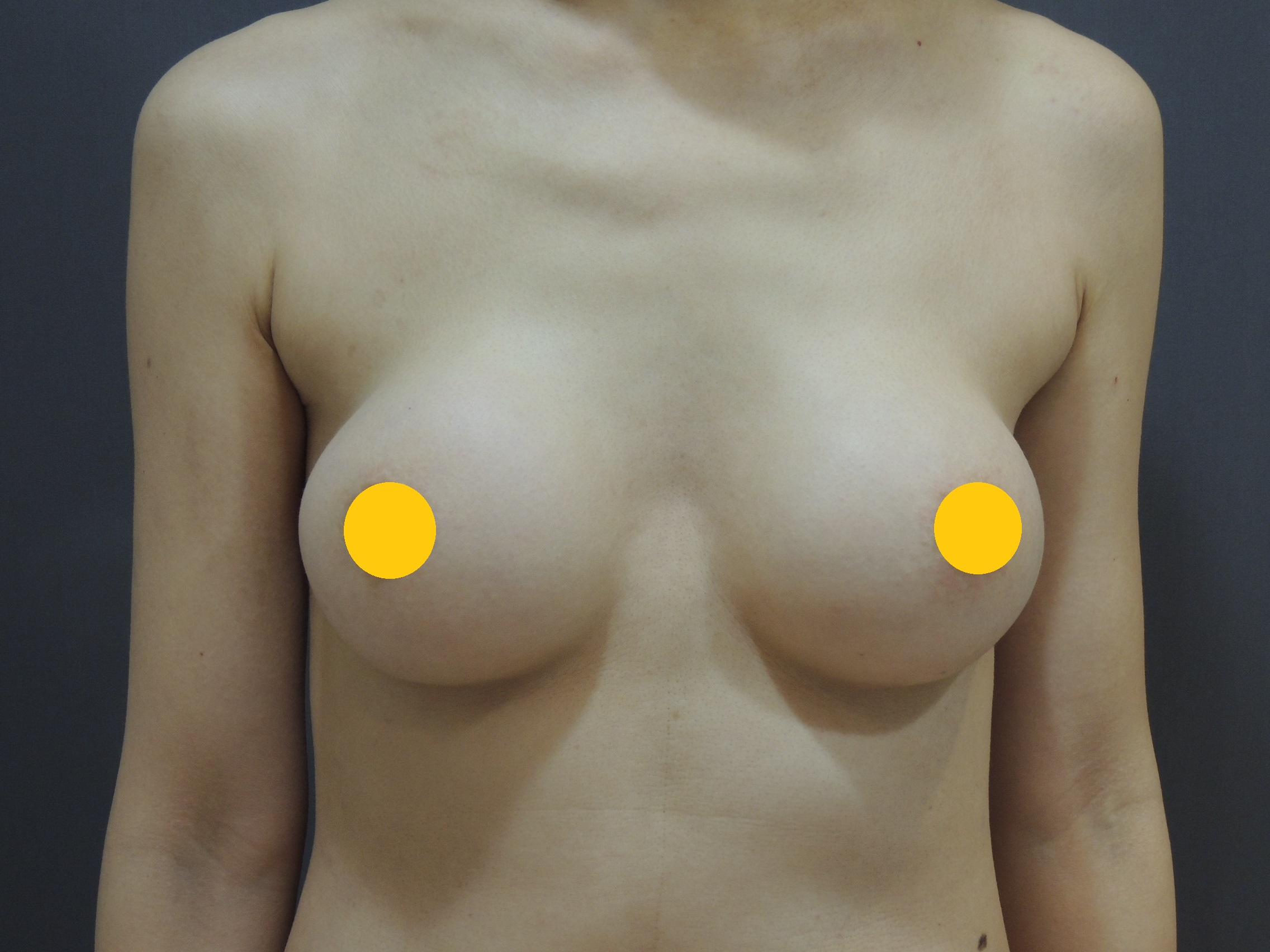 莢膜攣縮, 莢膜鈣化