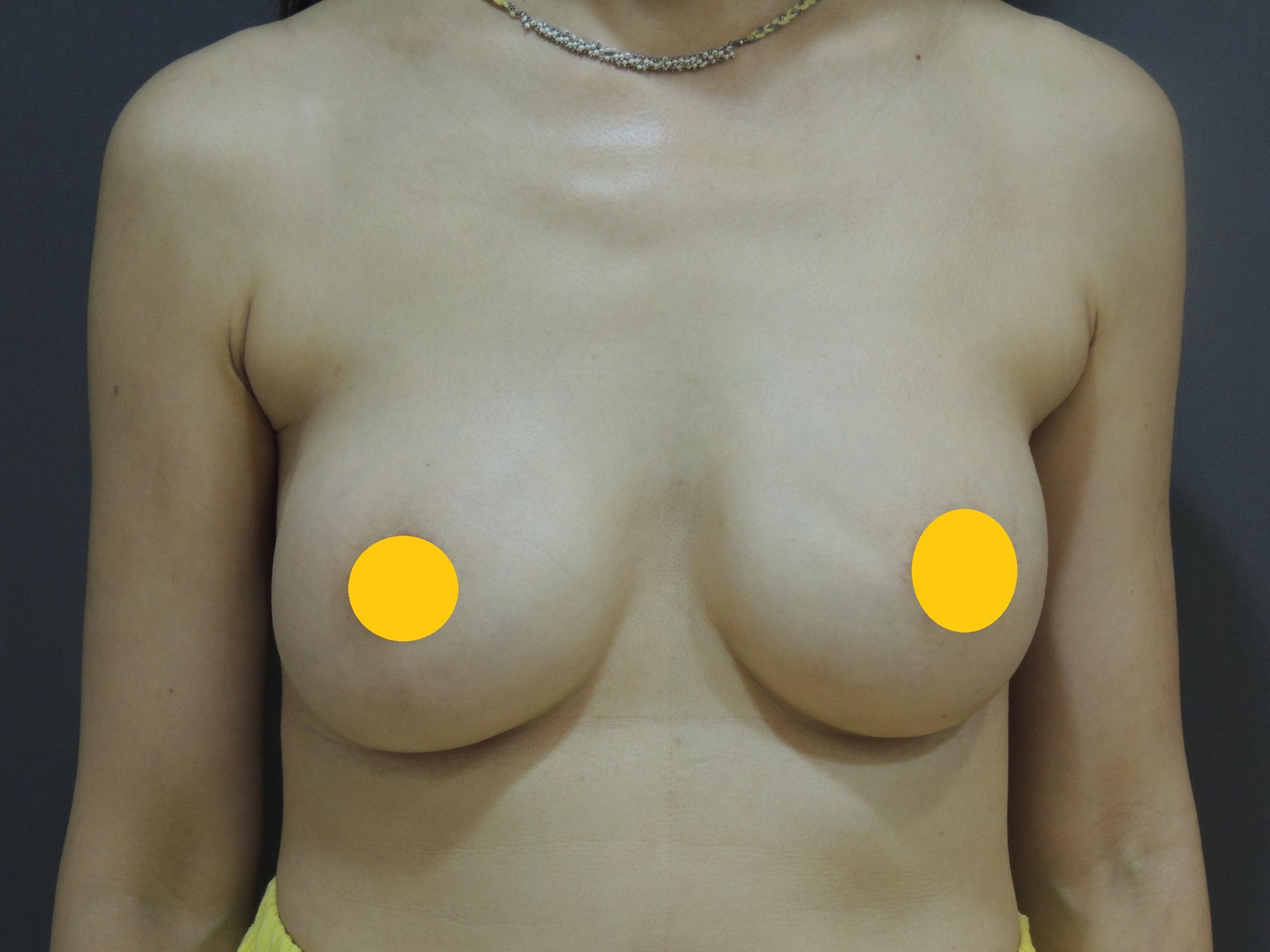 莢膜攣縮鈣化 調整術後