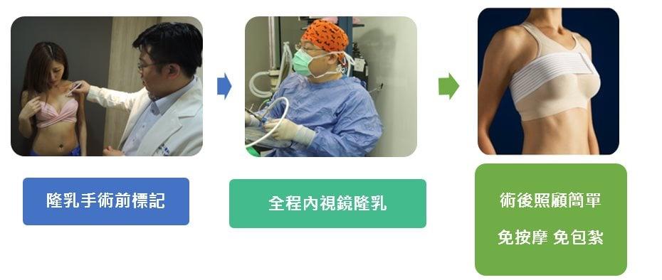 巨星整形外科林敬鈞隆乳手術流程