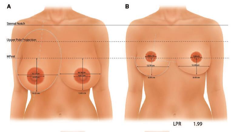 垂直切口縮乳手術
