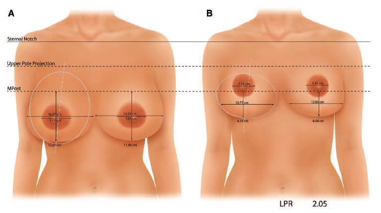 倒T縮乳手術