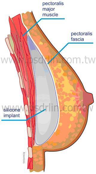 筋膜下密桃絨隆乳
