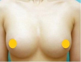 雙乳連合, synmastia