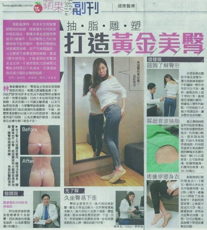 蘋果日報副刊採訪威塑抽脂雕塑蜜桃臀,微笑臀線,黃金脂肪塑造豐滿美臀